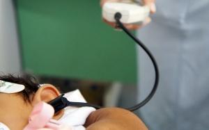 Casos de microcefalia
